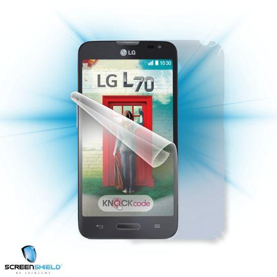 Fólie Screenshield LG D320N L70 - celé tělo